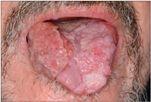 papilloma vírus és tünetei