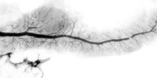 emberi papillomavírus zwangerschap endometrium rák nccn iránymutatás