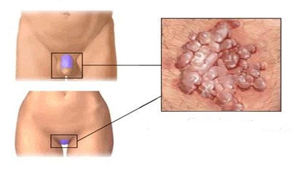 mekkora a condyloma vírusos papilloma icd 10