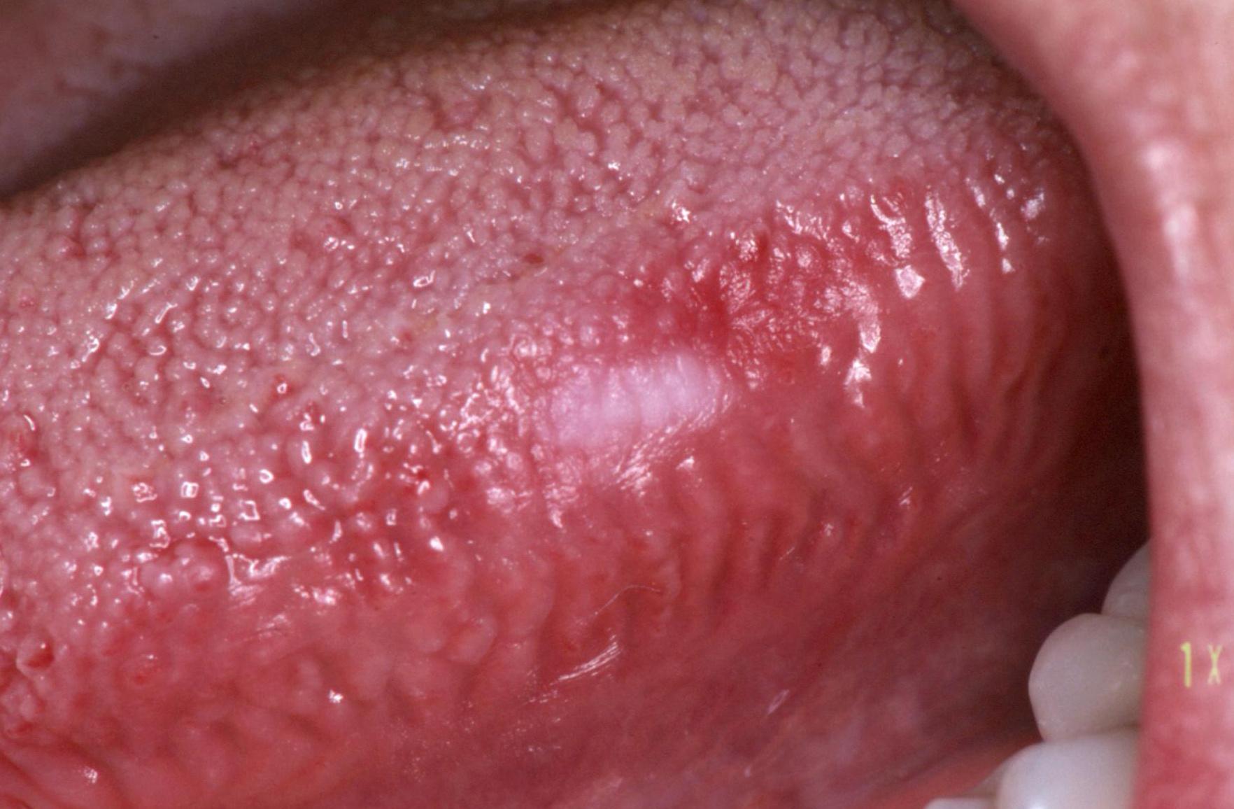 papilloma szemölcs a szájban
