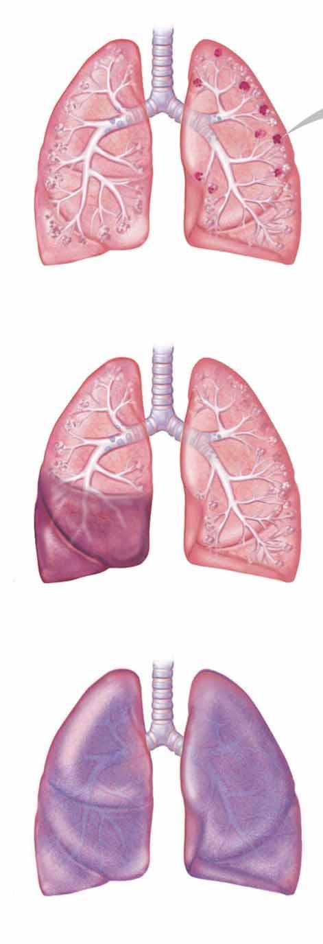 papilloma peroxid kezelés