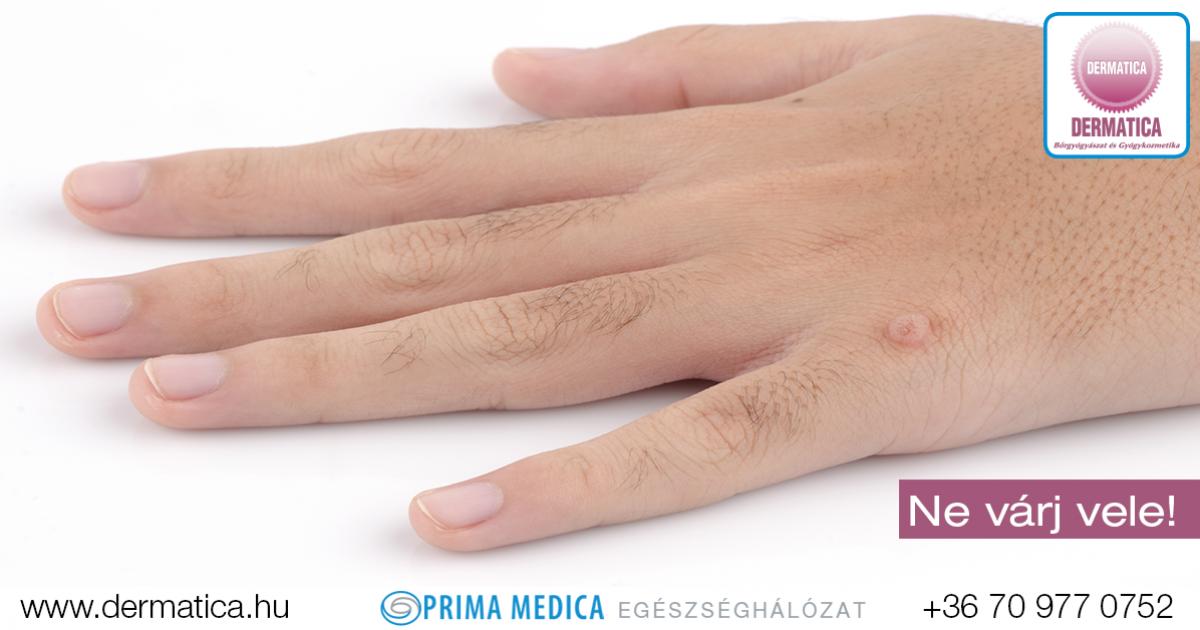 sok szemölcs van a kezeken hpv tedavisi sigil