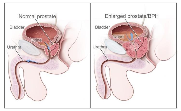 a trichocephalia tojásmérete
