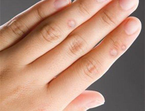 bőr papillómák kezelése papilloma vírus és gyermekek