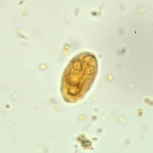 a giardia tüneteinek kezelése helminthosporium cactivorum