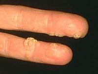 polip paraziták az orr kezelésében