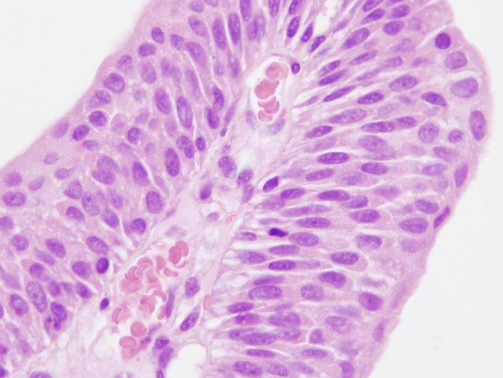 A galandféreg kiutasításáért. parazita fedővel ellátott bio kiegészítő