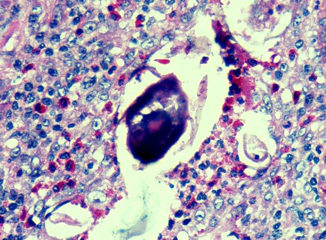 A papilloma vírus megtámadja a gyermekeket