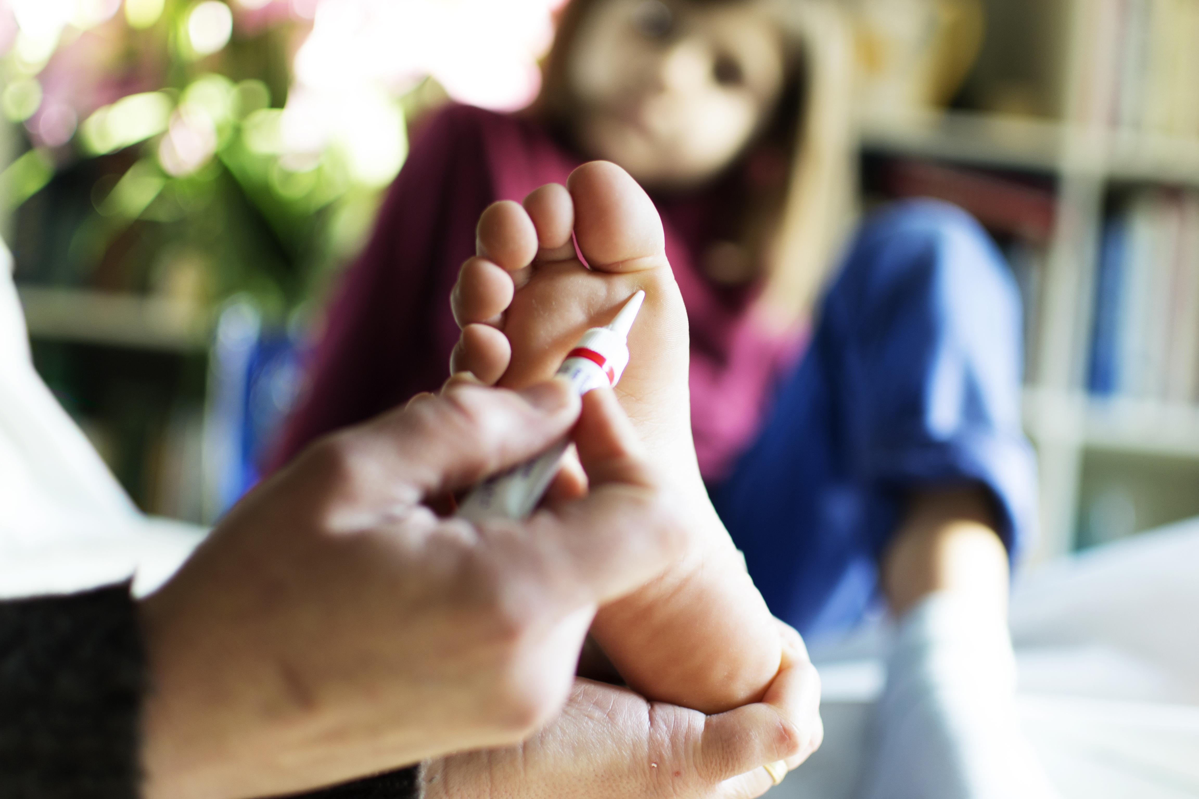 férgek típusai az emberi nyelvekben papilloma vírus és menstruáció