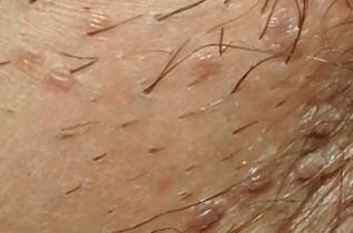 condyloma fertőzött nőknél