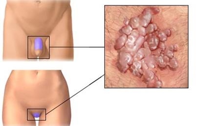 hogyan lehet eltávolítani a genitális papillómát a helminthiasis megelőzése felnőtteknél