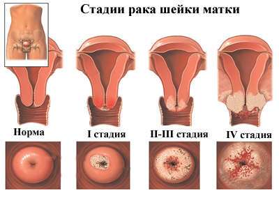 méh rákos papilloma)
