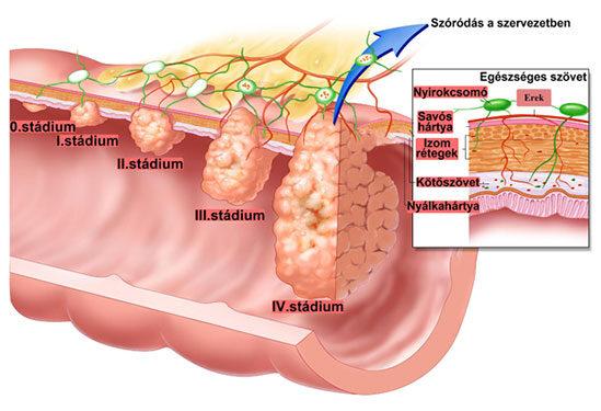 papilloma vírus homeopátiás terápia