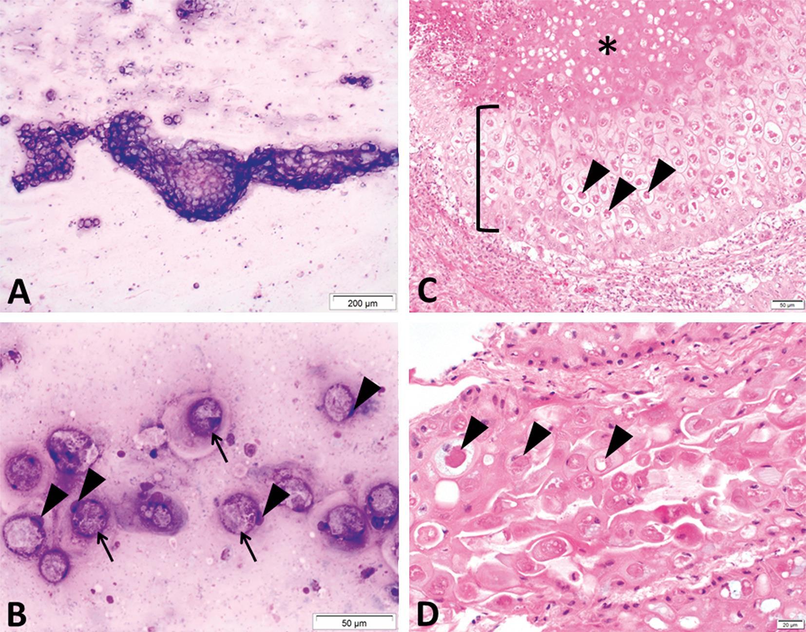 Papilloma vírus torokfájás - Honnan származik a giardiaza