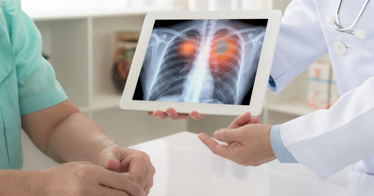 A tüdőrák kockázati és védő tényezői