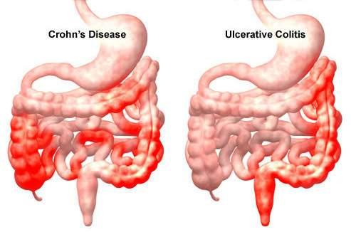 hatekony gyogyszer az emberi test parazitaira természetes parazita gyógyszer