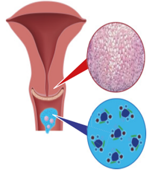 HPV diagnosztika - Dr. Vincze Gábor szülész - nőgyógyász, Veszprém