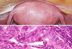 endometrium rák uptodate