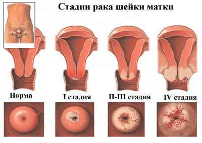 hámrák tünetei