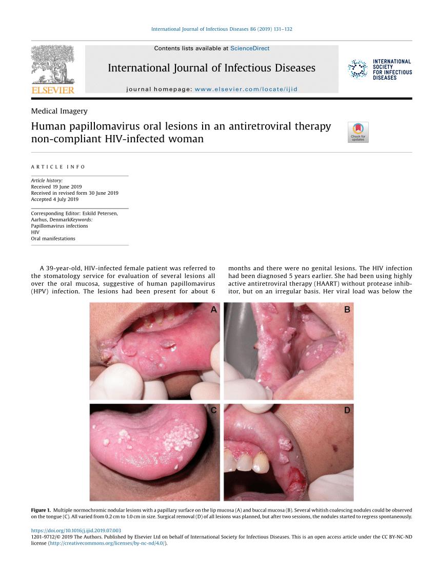 humán papillomavírus-fertőzés gyógyítható