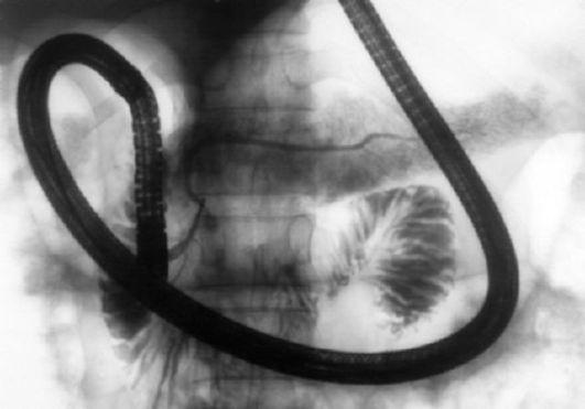 papilloma vírus biodekódolása vérszegénység és menstruáció