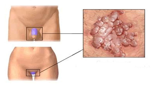 szagtalan szemölcsök emberi bőr papillomatosis