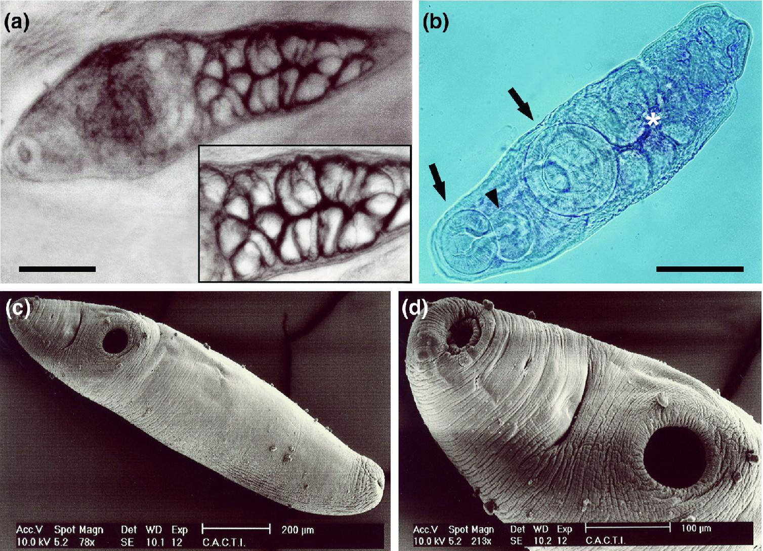 paraziták metazoans és protozoans