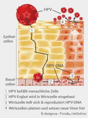 hpv vírus egy DNS hpv vírus végbélrák