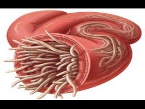 hogyan lehet gyógyítani az enterobiosist méregtelenít minden természetes étrend-kiegészítőt