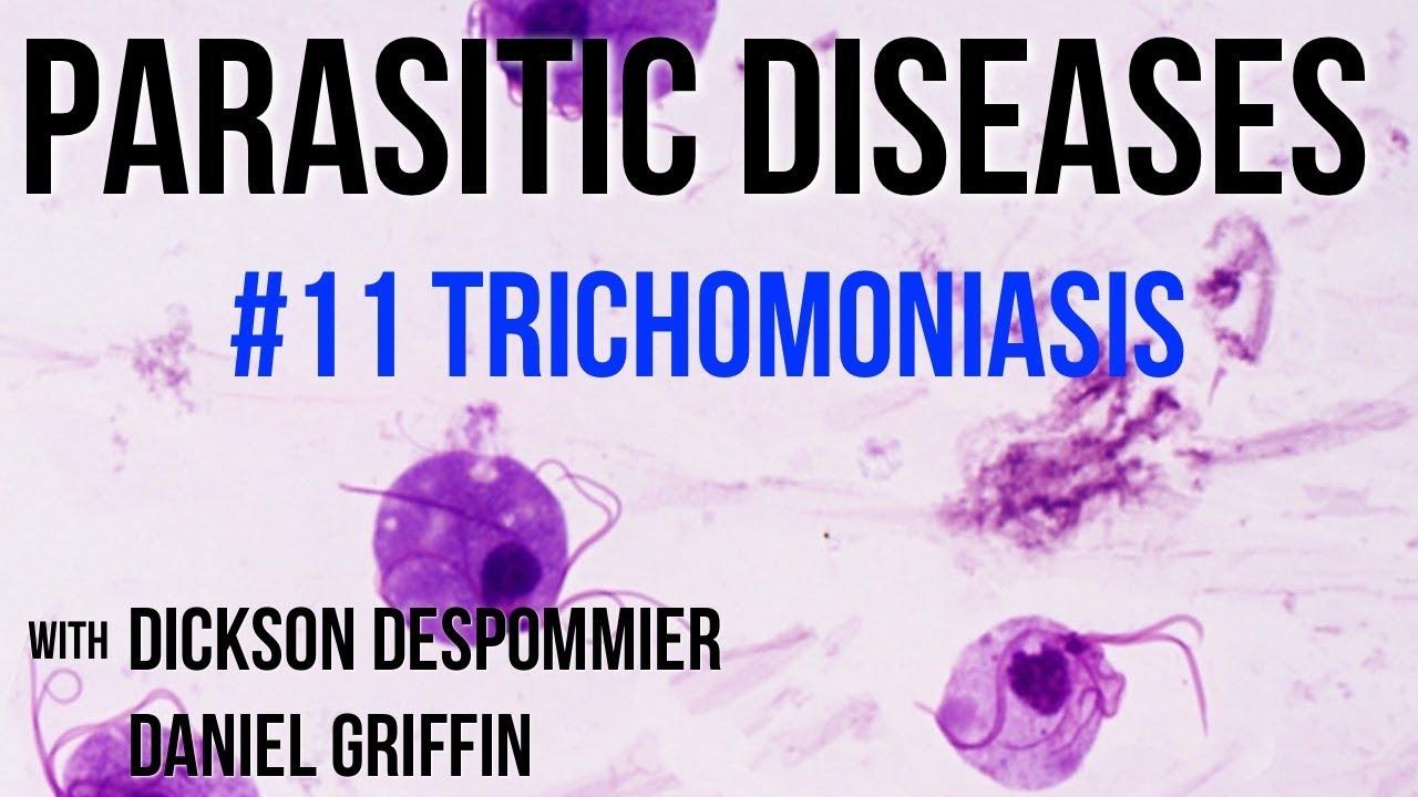 Amikor felfedezték Trichomonas-t Hogyan lehet kilábalni a prosztatagyulladás fórumából