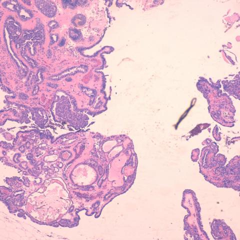 Echinostome paraziták. Tartalom ajánló