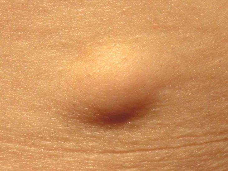 gomba terhesség alatt szürke féreg néven