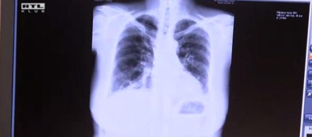 tüdőrák 20 éves korban paraziták idézetei