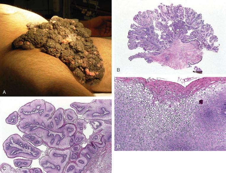 Méhnyakrákos fájdalom | Miri Tej A hpv kisülést okoz