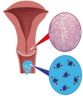 gyomor érrendszeri rák inváziója condyloma acuminata hogyan kell kezelni
