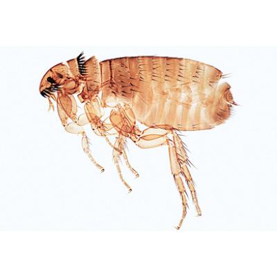 schistosomiasis szövettana