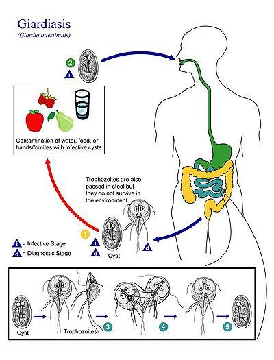 fekete parazita eszközök a paraziták eltávolítására az emberi testből