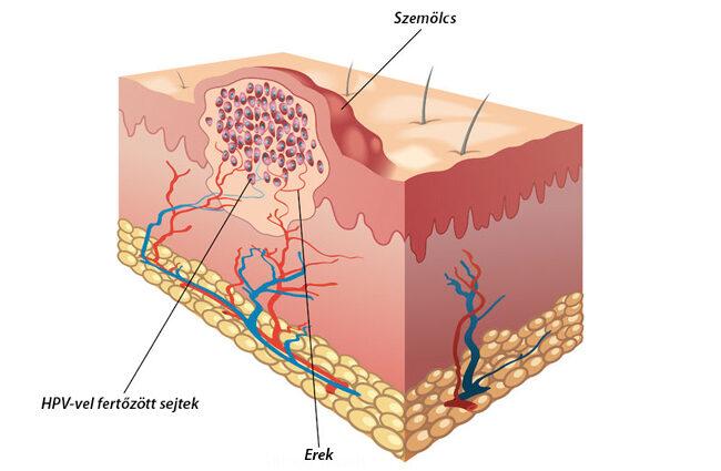 szemölcsök a végbélnyílás kezelésén a hüvelyi kezelés genitális szemölcsei
