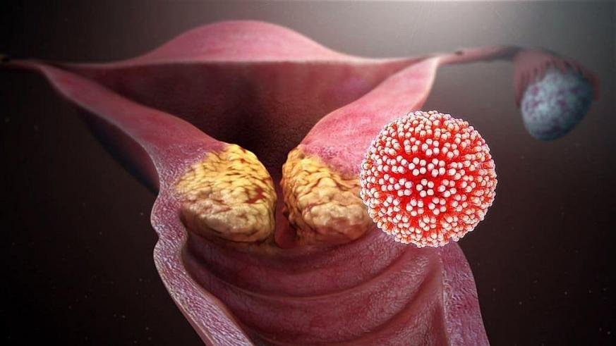 HPV-vel kezelik)