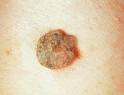 Isoprinozin Orvában. Valtrex vagy zovirax anginával.