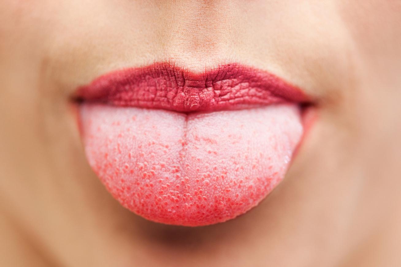 hpv a szájban képek HPV-kezelés nőknél