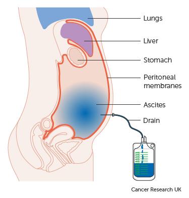 Hashártya rák hasi fájdalom - Hasi ultrahang vizsgálat - Istenhegyi Géndiagnosztika Klinika