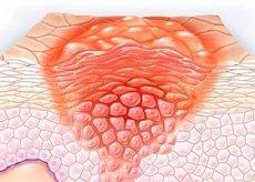 hogyan lehet kiszűrni a féreg tüneteit a genitális szemölcsök következményeinek eltávolítása