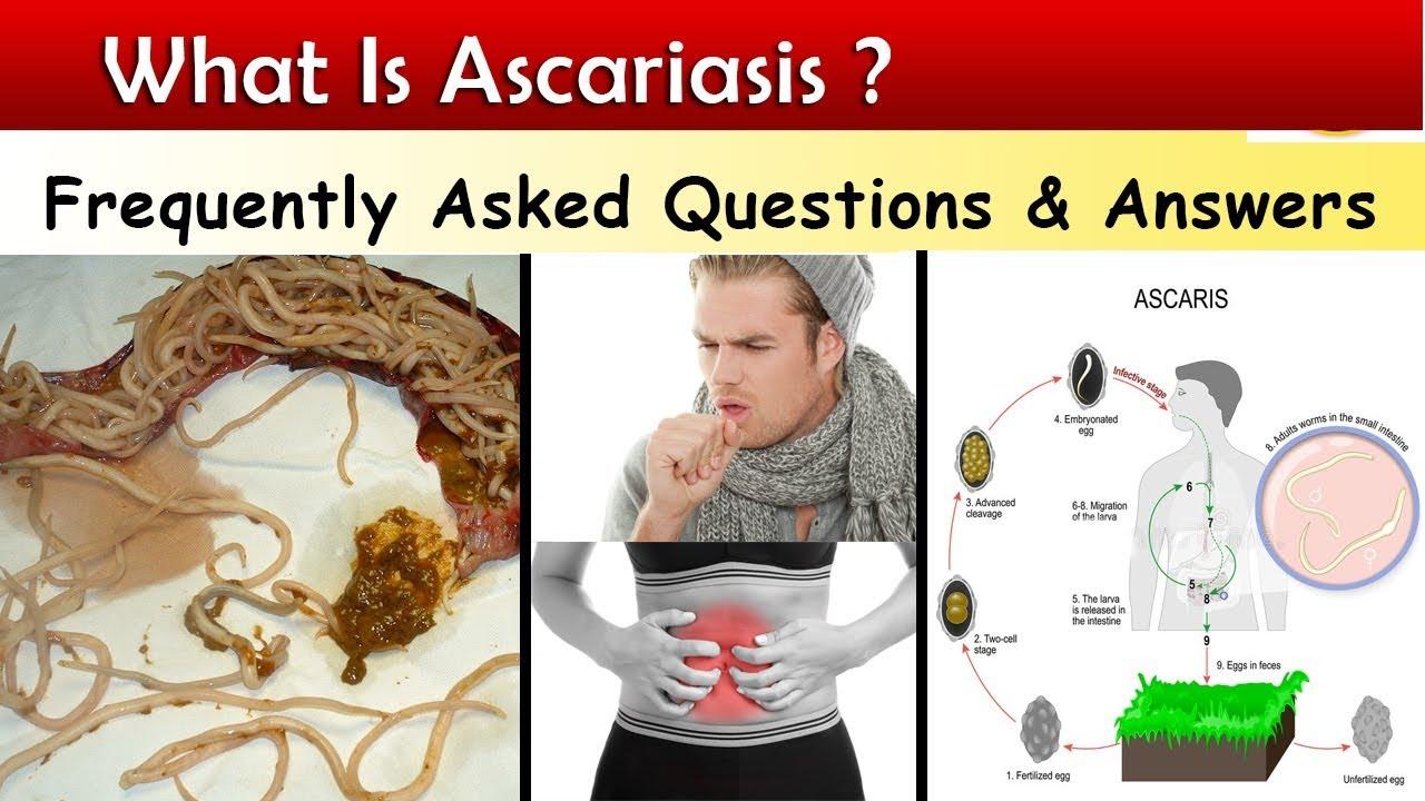 az ascaris kezelésének hagyományos módszerei