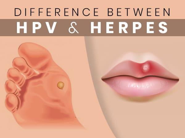 hpv és herpesz egyszerre