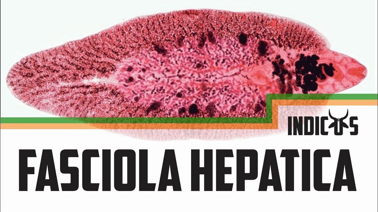 fascioliasis tünetei és kezelése)