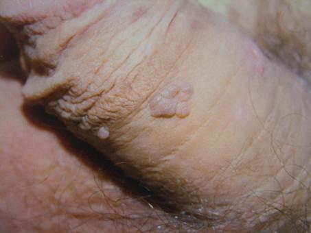 szemölcsök az arcon nőknél a lábujjak között hámozza meg a bőrkezelést