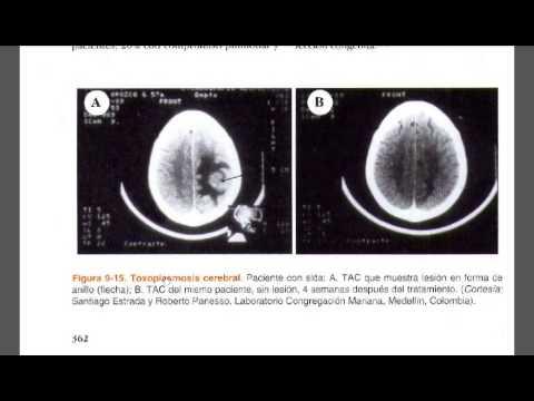 inkubációs periódus toxoplazmózis