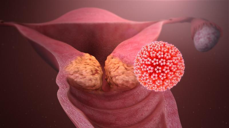 papilloma vírus kolonizációja