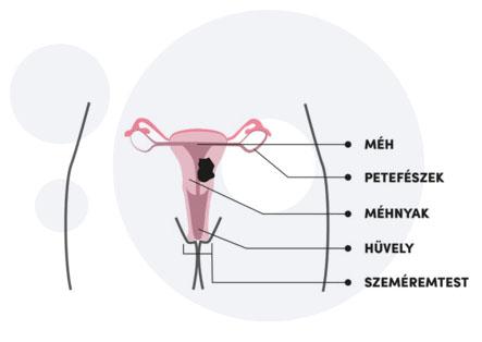 hpv a nemi szervek területén
